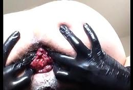 Giant Plug an Belladonna Fist Prolapse.MOV